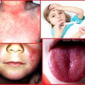 Як лікувати скарлатину у дітей