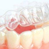 Як вирівняти зуби капами