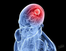 Що показує мрт головного мозку