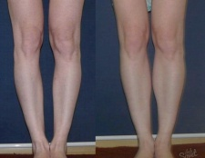 Як виправити криві ноги