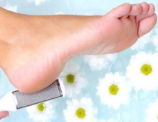 Як видалити мозоль на нозі
